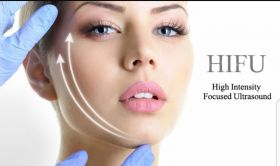 HIFU Facelifting